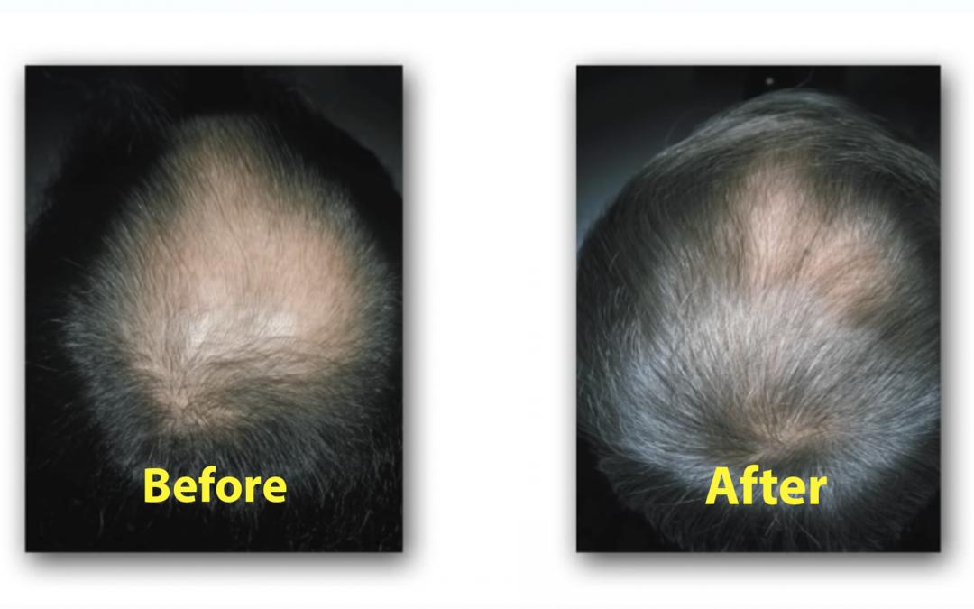 Hair Regrowth Implantation