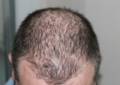 Thinning Hair Loss