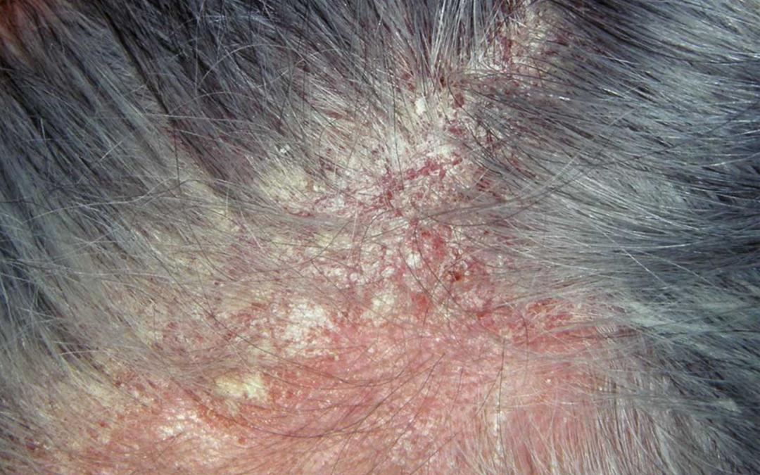 Sensitive Skin, Seborrheic Dermatitis HAIR & SCALP CENTER