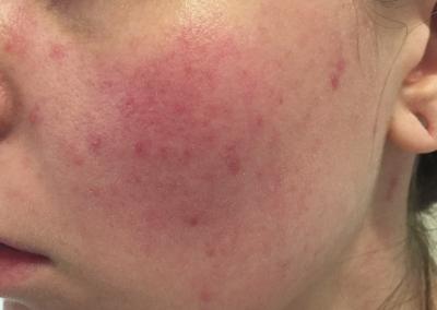 Rosacea, Red Birthmark, Facial Redness
