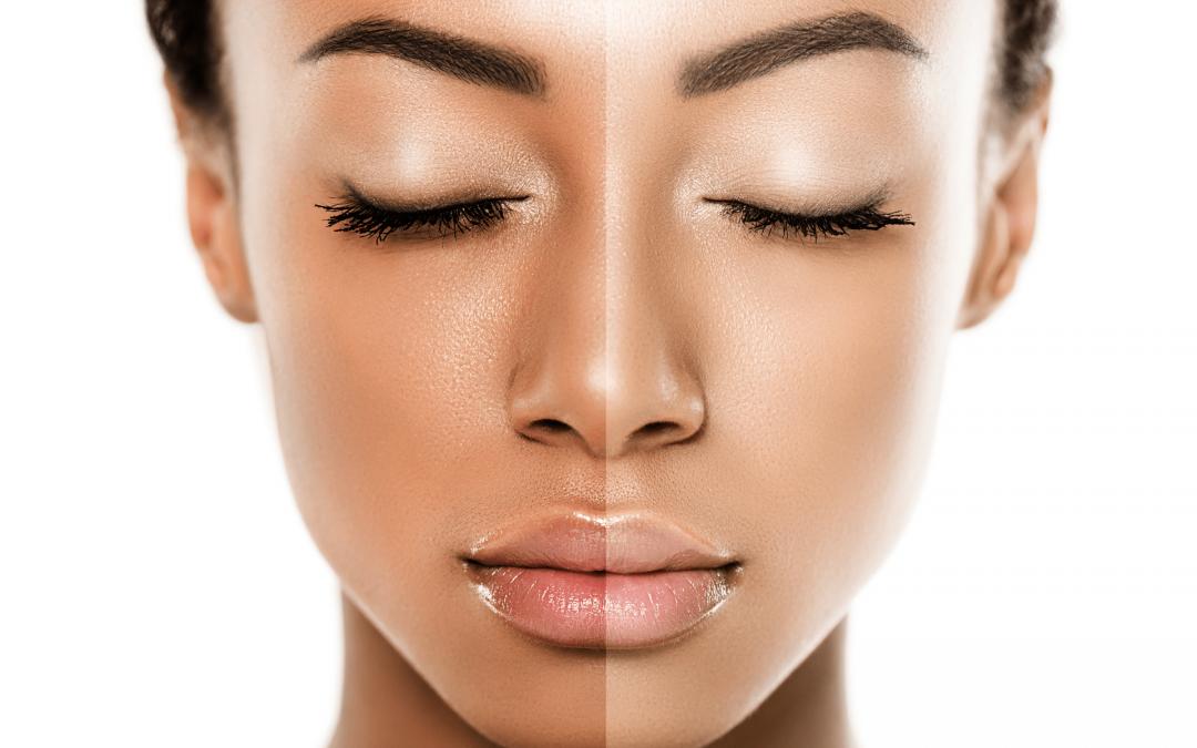 Skin Brightening & whitening